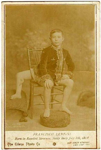 Франческо Лентини (Francesco A. Lentini) — человек родившийся с тремя ногами (2)