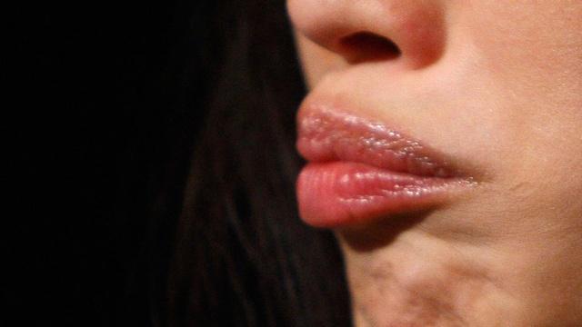 Пенсионерка спросонья намазала губы суперклеем (1)