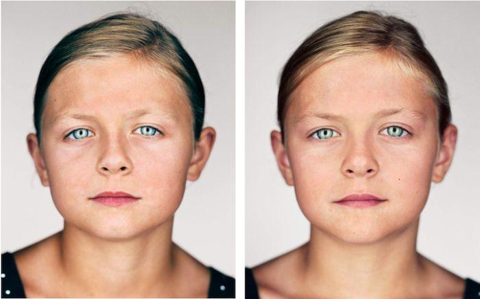 Однояйцевые близнецы (1)