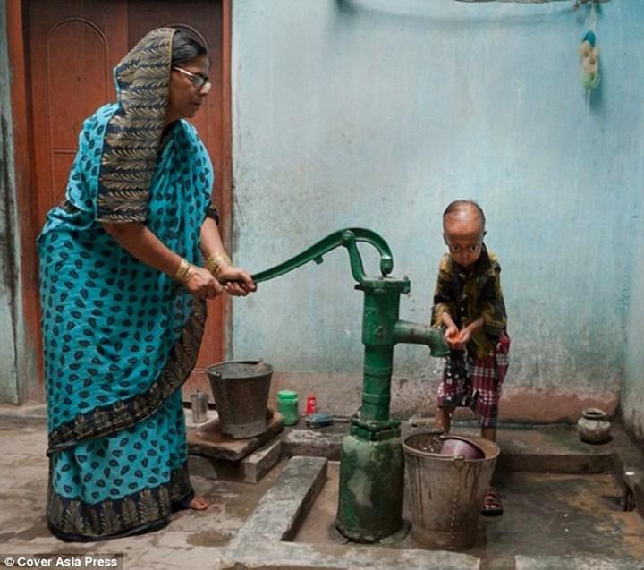 """""""Прогерия"""" — редкое заболевание преследующее семью из Индии (6)"""