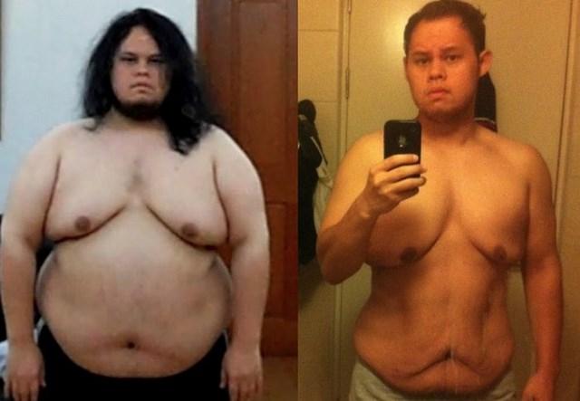 Чем чревато быстрое похудение (2)