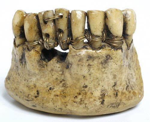 Суровая стоматология прошлого
