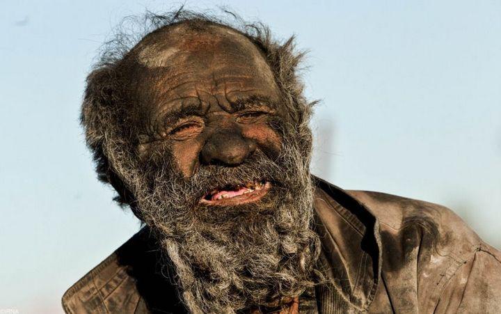 Как выглядит человек, который не мылся несколько лет (4)