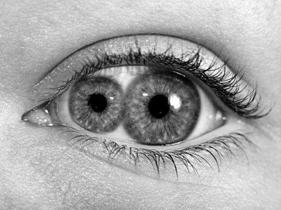 Pupula duplex (двойной зрачок) — чрезвычайно редкое заболевание, когда в одном глазу сразу два зрачка
