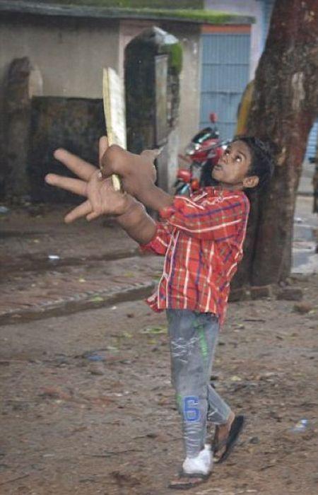 Мальчик с аномально большими руками (11)