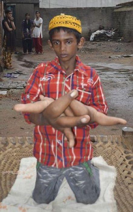 Мальчик с аномально большими руками (6)