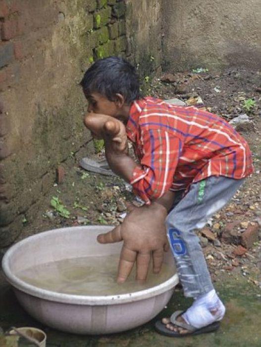 Мальчик с аномально большими руками (5)