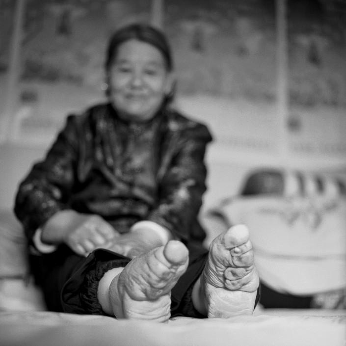 Бинтование ног — жестокий обычай китайских женщин (4)
