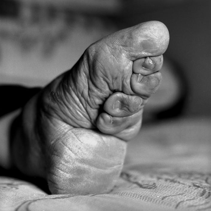 Бинтование ног — жестокий обычай китайских женщин (12)