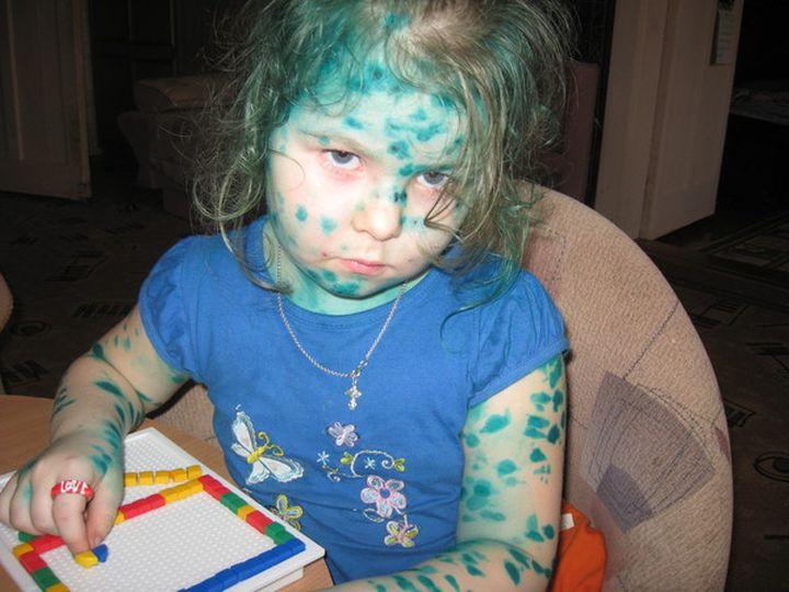 Дети, перепачканные в зеленке (12)