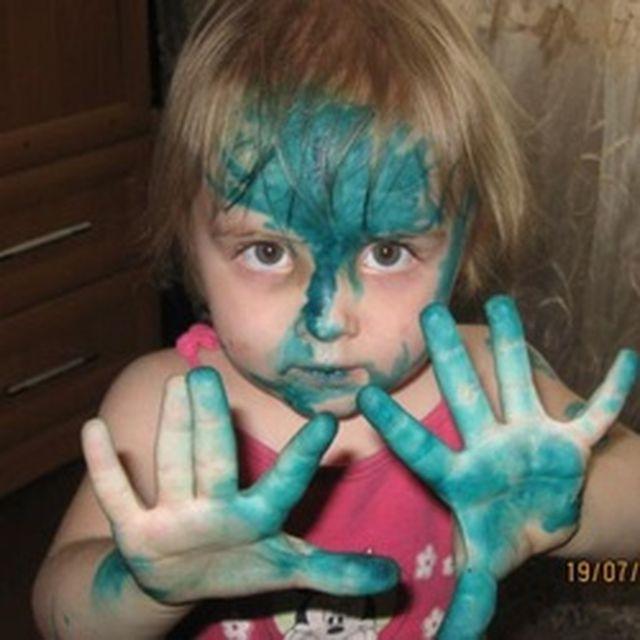 Дети, перепачканные в зеленке (9)