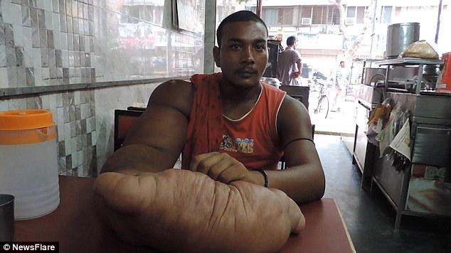 Индиец Баблу и его гигантская рука (2)