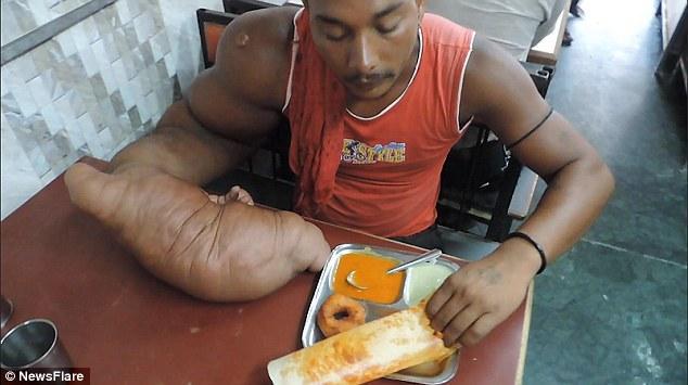 Индиец Баблу и его гигантская рука (3)