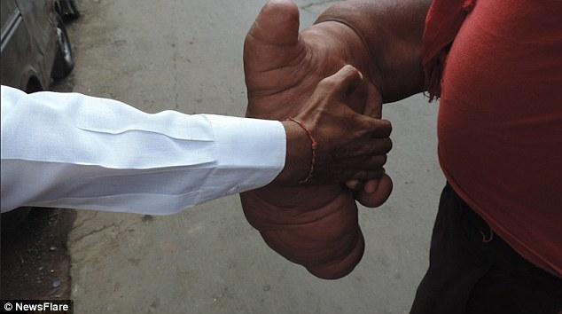 Индиец Баблу и его гигантская рука (4)