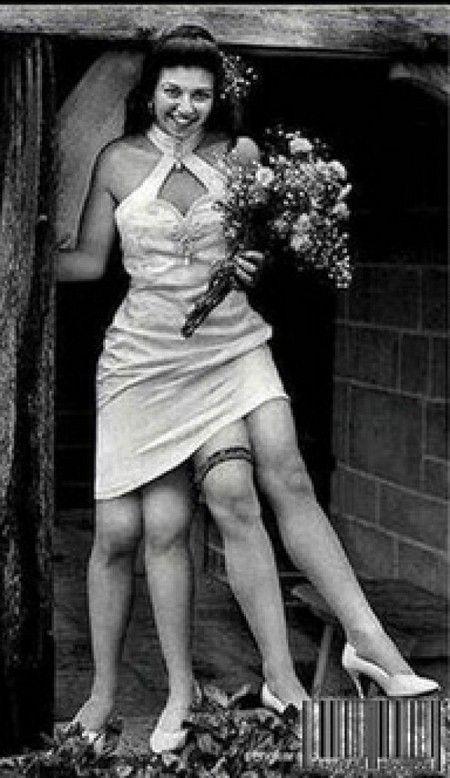Удивительная мутация. Женщина с четырьмя ногами (2)