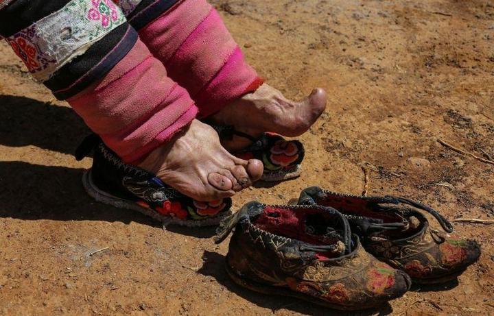 Последние китаянки пережившие бинтование ног (8)