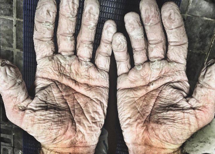 Руки гребца после после перехода в 1000 км (2)