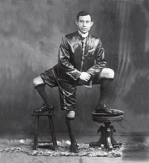 Франческо Лентини (Francesco A. Lentini) — человек родившийся с тремя ногами (1)