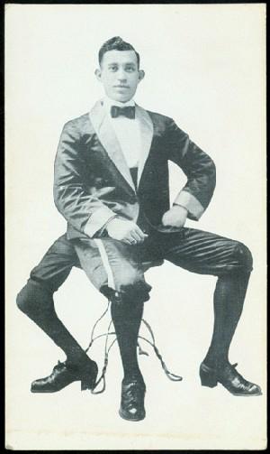 Франческо Лентини (Francesco A. Lentini) — человек родившийся с тремя ногами (4)