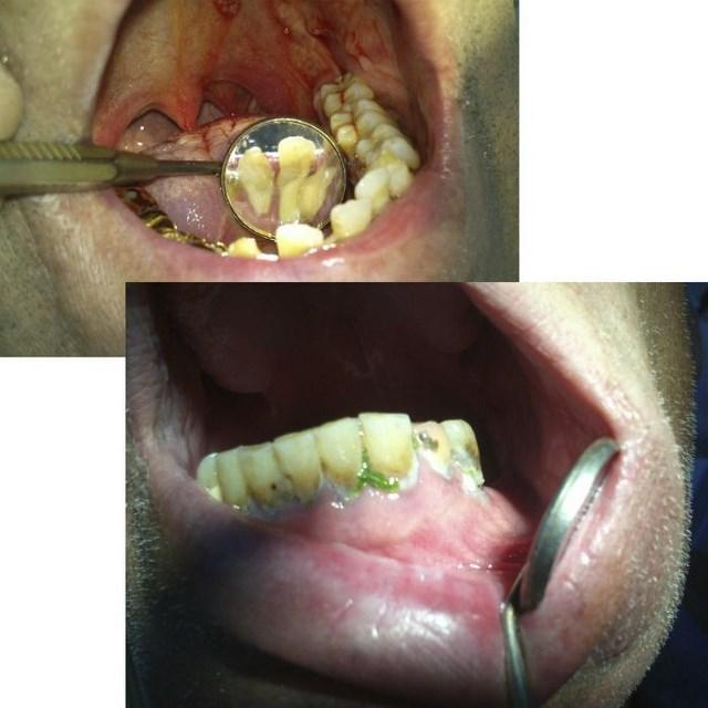 Стоматология без прикрас или откровения зубного врача (8)