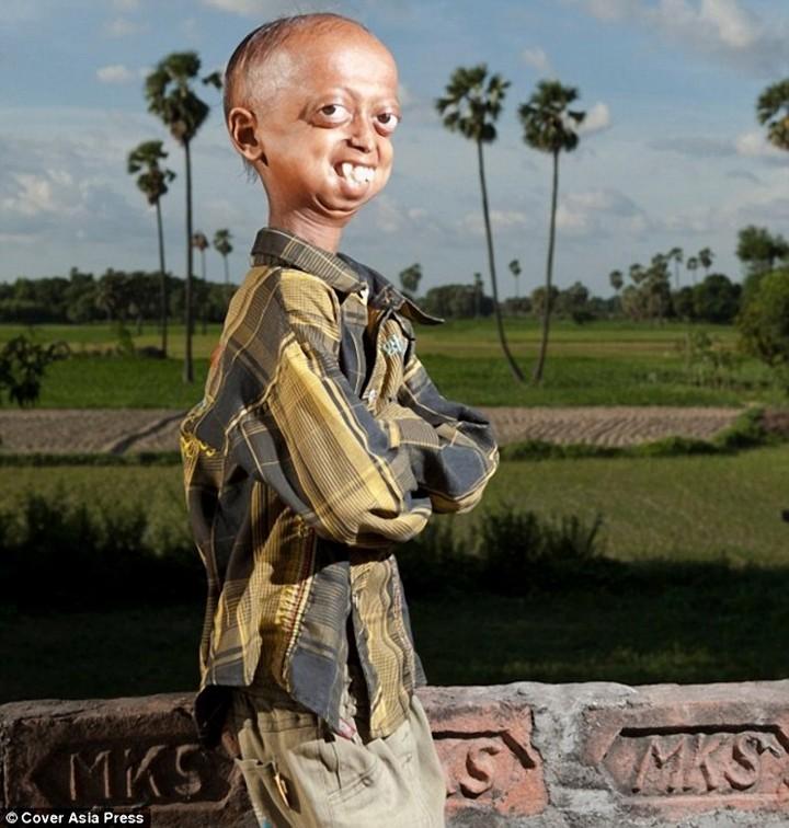 """""""Прогерия"""" — редкое заболевание преследующее семью из Индии (1)"""
