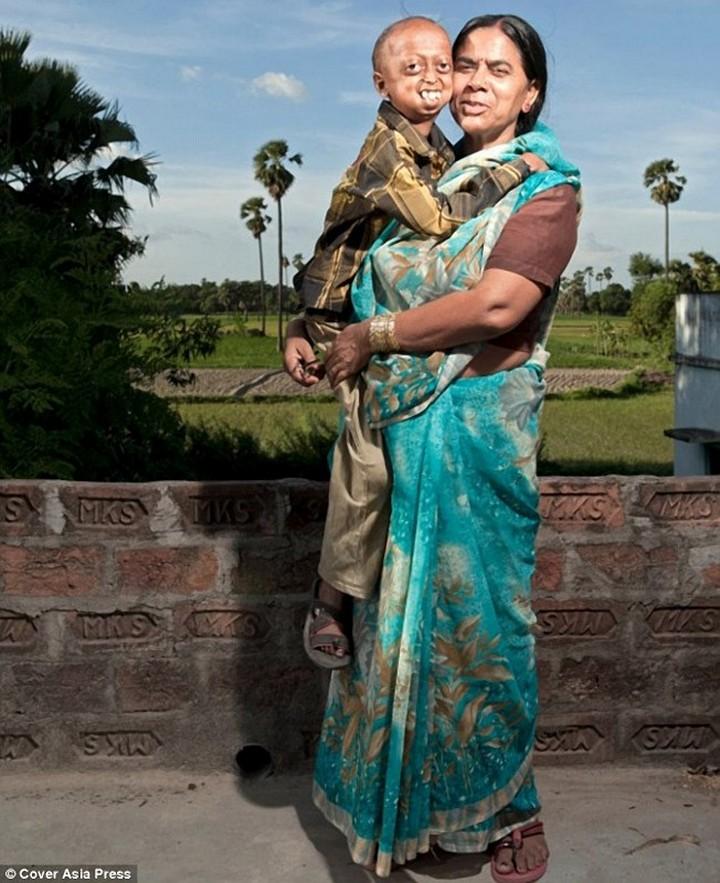 """""""Прогерия"""" — редкое заболевание преследующее семью из Индии (3)"""