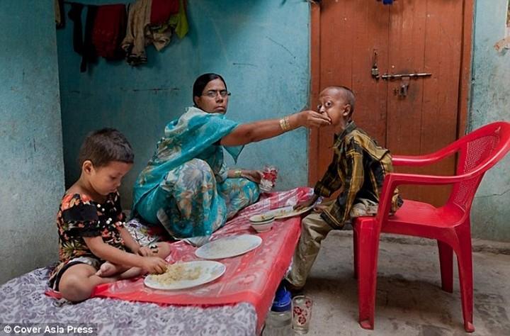 """""""Прогерия"""" — редкое заболевание преследующее семью из Индии (5)"""