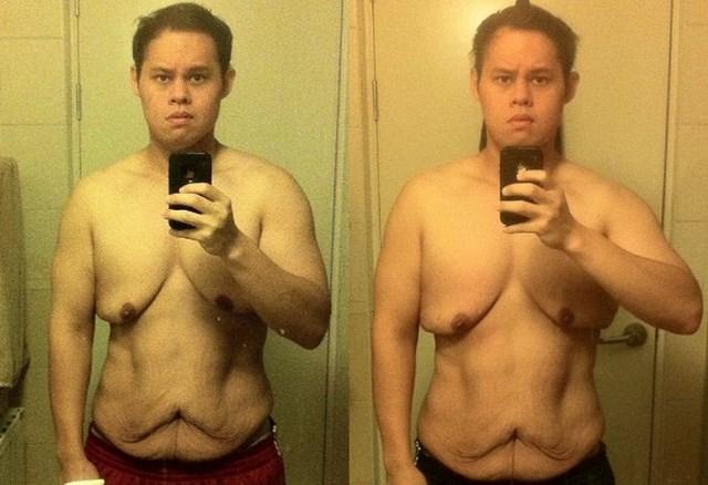 Чем чревато быстрое похудение (3)