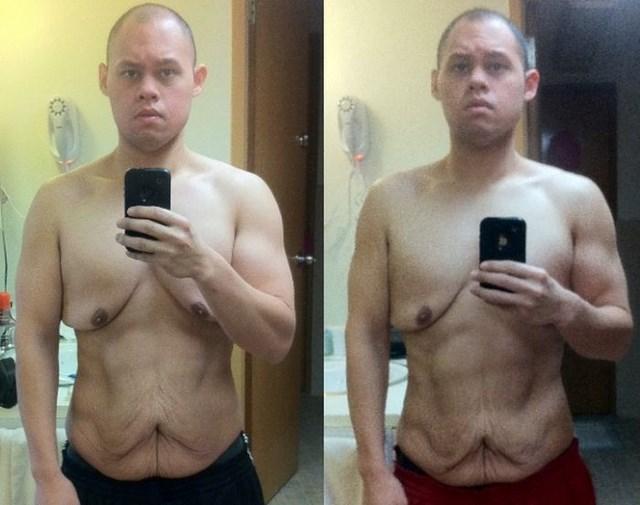 Чем чревато быстрое похудение (4)