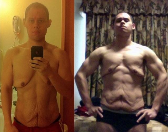 последствия резкого похудения