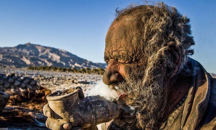 Как выглядит человек, который не мылся несколько лет (7)