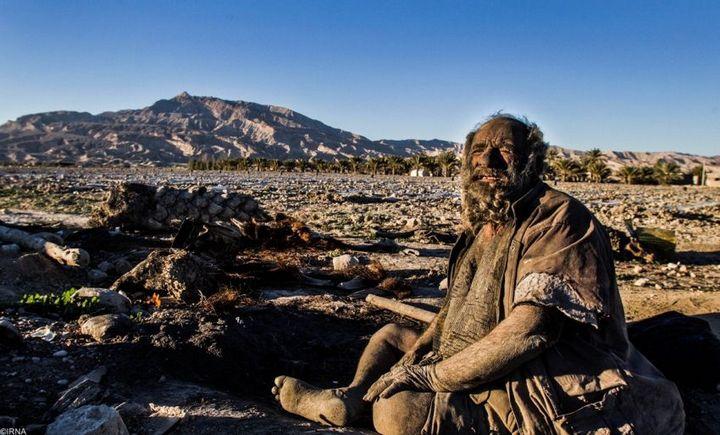 Как выглядит человек, который не мылся несколько лет (2)
