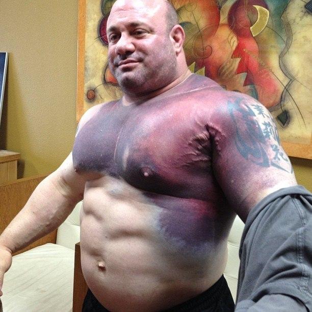 Что происходит когда рвутся мышцы (2)