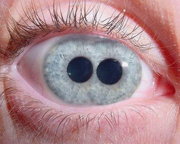 Pupula duplex (двойной зрачок) — чрезвычайно редкое заболевание, когда в одном глазу сразу два зрачка (2)