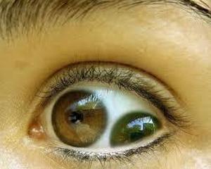 Pupula duplex (двойной зрачок) — чрезвычайно редкое заболевание, когда в одном глазу сразу два зрачка (3)