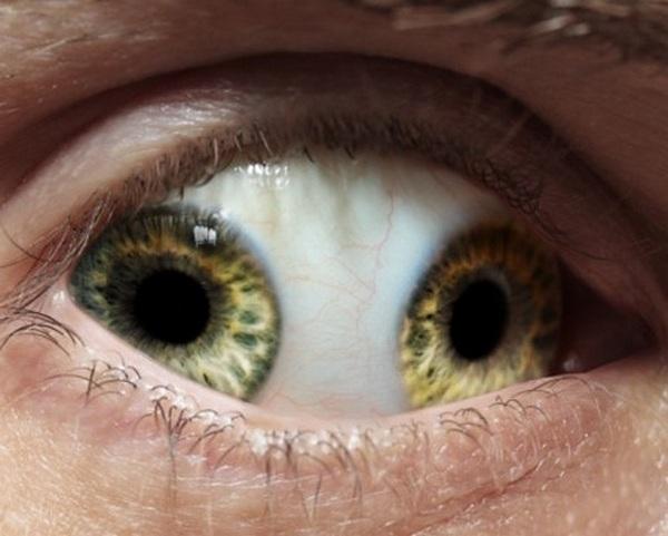 Pupula duplex (двойной зрачок) — чрезвычайно редкое заболевание, когда в одном глазу сразу два зрачка (1)