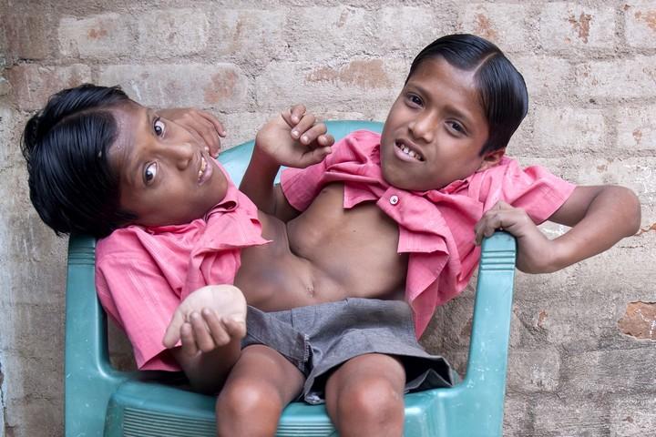 Сиамские близнецы Шиванатха и Шиврама (1)