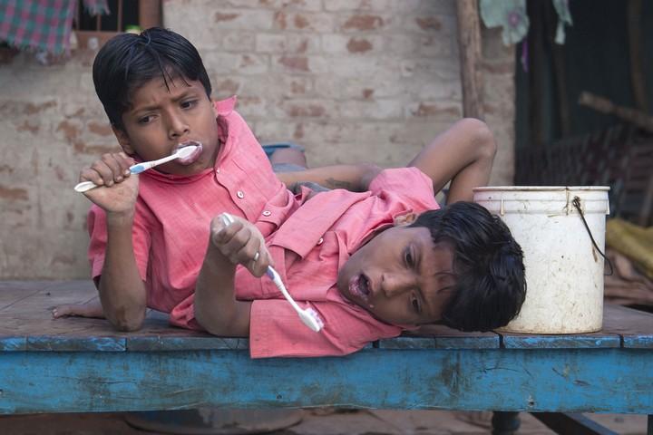 Сиамские близнецы Шиванатха и Шиврама (3)