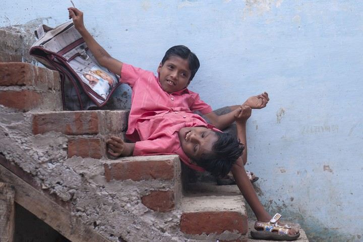 Сиамские близнецы Шиванатха и Шиврама (5)