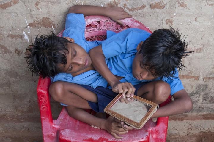 Сиамские близнецы Шиванатха и Шиврама (6)