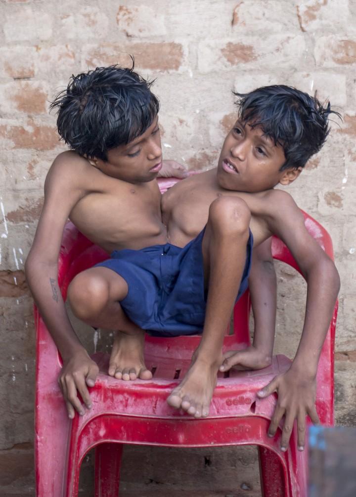 Сиамские близнецы Шиванатха и Шиврама (7)