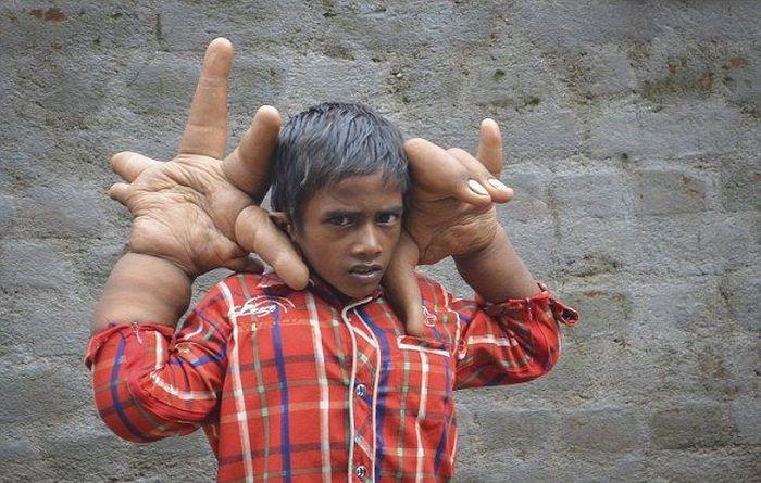 Мальчик с аномально большими руками (1)