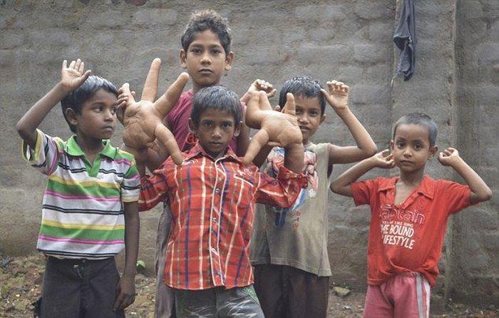 Мальчик с аномально большими руками (10)
