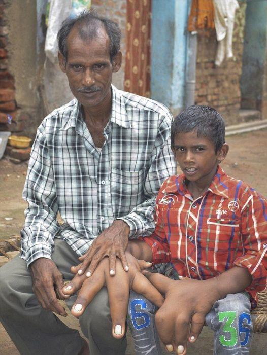 Мальчик с аномально большими руками (8)