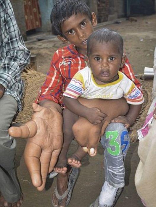 Мальчик с аномально большими руками (4)
