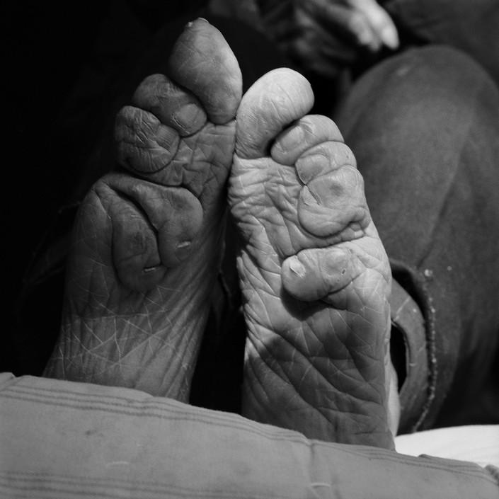 Бинтование ног — жестокий обычай китайских женщин (8)