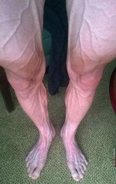 Ноги профессионального велосипедиста после 250 км. гонки в Тур де Франс