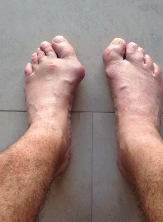 Как выглядят ноги профессионального кикбоксера (2)