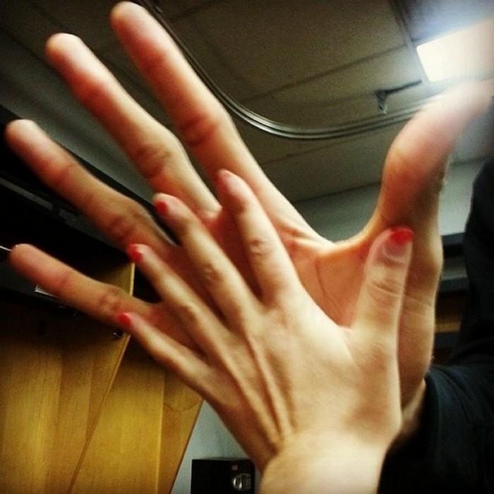 Рука баскетболиста (1)