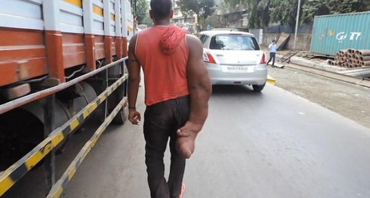Индиец Баблу и его гигантская рука (1)
